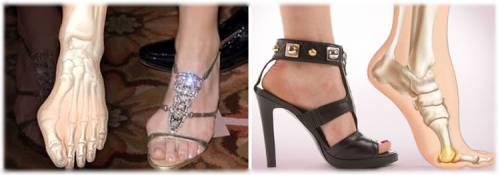 «Косточка» на большом пальце ноги: 7 причин